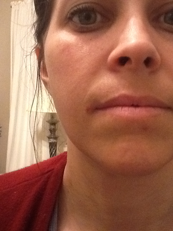 Discourses of a Healthy Frugal Family: Cold Sore Medication ...
