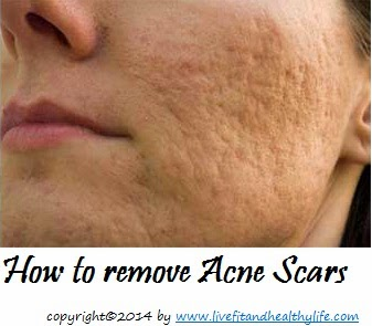 How to remove Acne Scars - Health care, beauty tips...