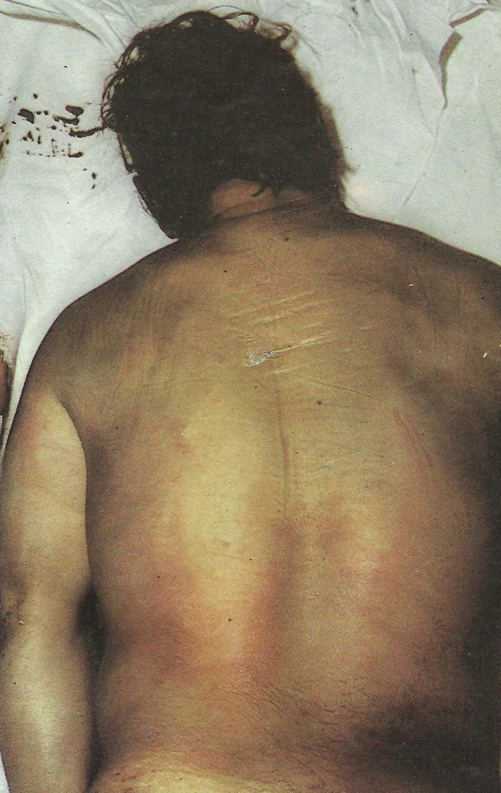 Meningioma del departamento de pecho de la columna vertebral los síntomas