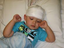 18 MON - EEG