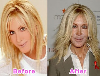 Horrible Plastic Surgery
