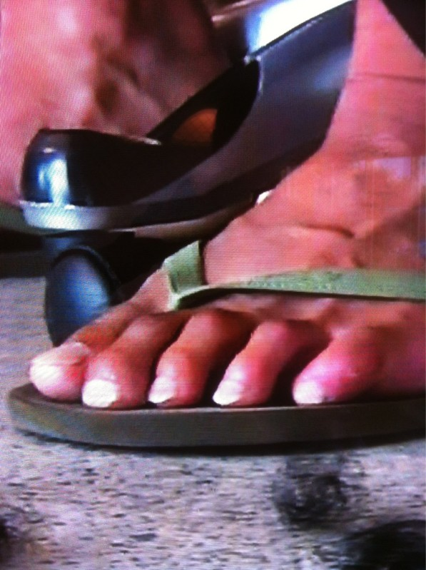 Why do guys have ugly feet