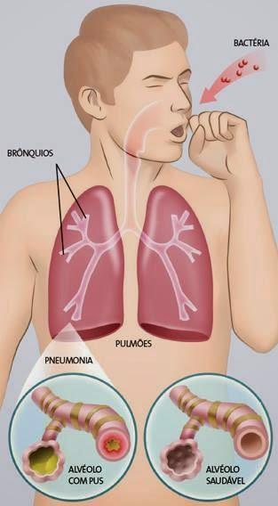 Acupuntura X Pneumonia