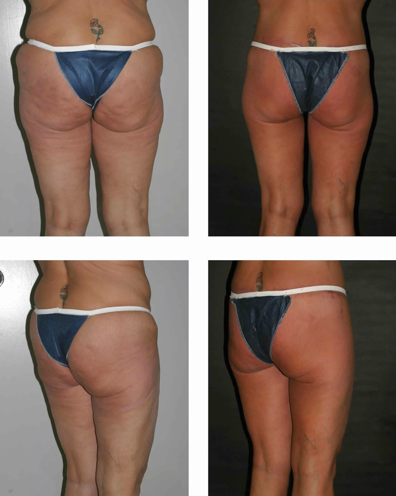 Tips on How to Lose Butt Fat Fast?