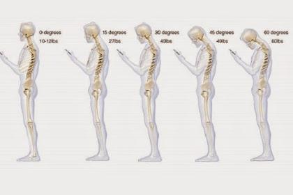 Ini yang Terjadi Pada Tulang Punggung Jika Kecanduan Ponsel