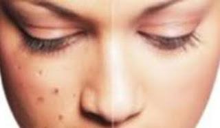 Cara Menghilangkan Bintik-Bintik di Wajah Secara Alami
