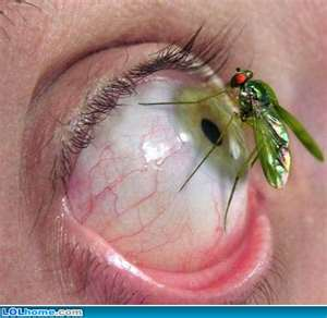 how to get a bug out of your eye