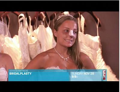 Bridalplasty Reality Show