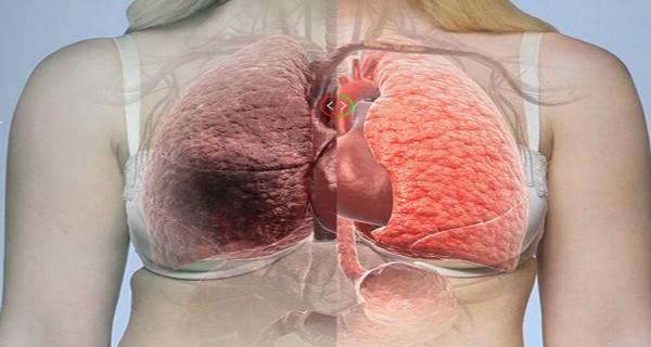 SE-DESCUBRIÓ-FINALMENTE-Qué-causa-el-cáncer-de-pulmón
