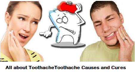 All about ToothacheToothache Causes and Cures.