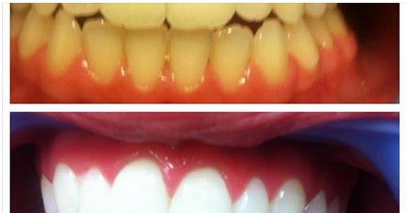 """تبيييض الأسنان بسهولة من صديقة الصفحة """"وصال"""""""
