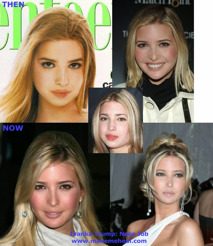 Ivanka Trump Plastic Surgery - Before After Pictures 2016