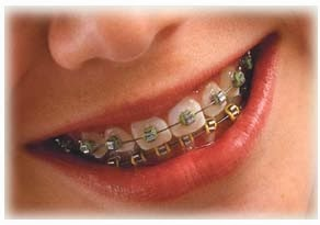 Mairi: Avaliação dentária com Dr. Eduardo Pereira.