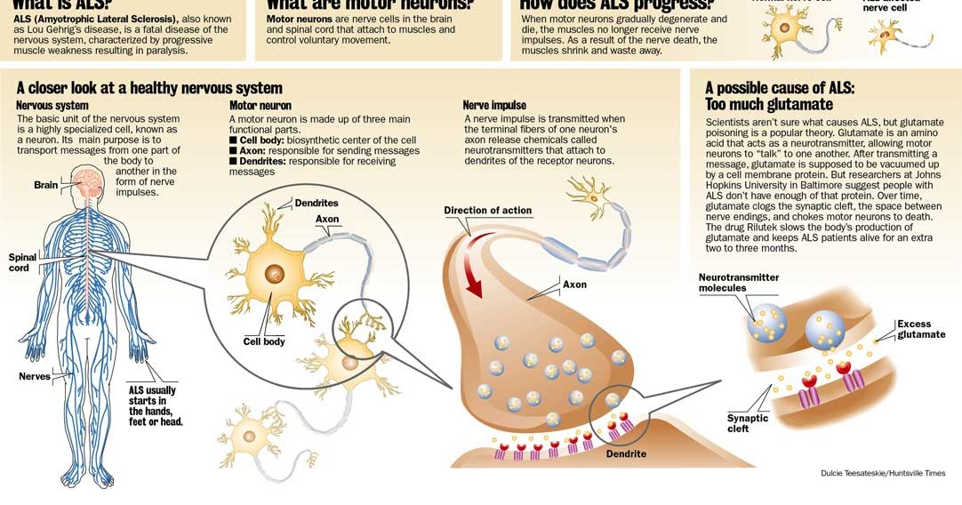 a description of amyotrophic lateral sclerosis also known as lou gehrigs disease Learn about amyotrophic lateral sclerosis (als), also called lou gehrig's disease, and possible medicare coverage.