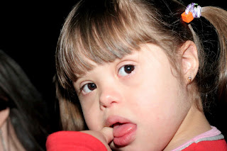 A inclusão de alunos com síndrome de Down: desafios