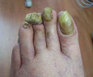 piede sinistro con unghie affette da onicogrifosi