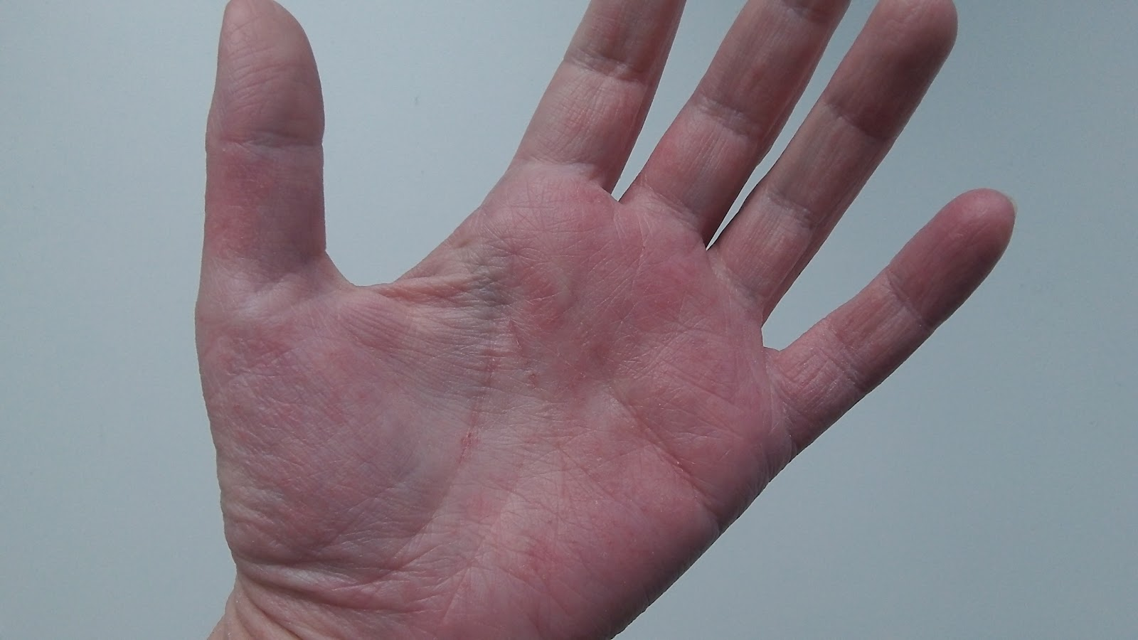 Tiny Red Dots On Palms - Dermatology - MedHelp