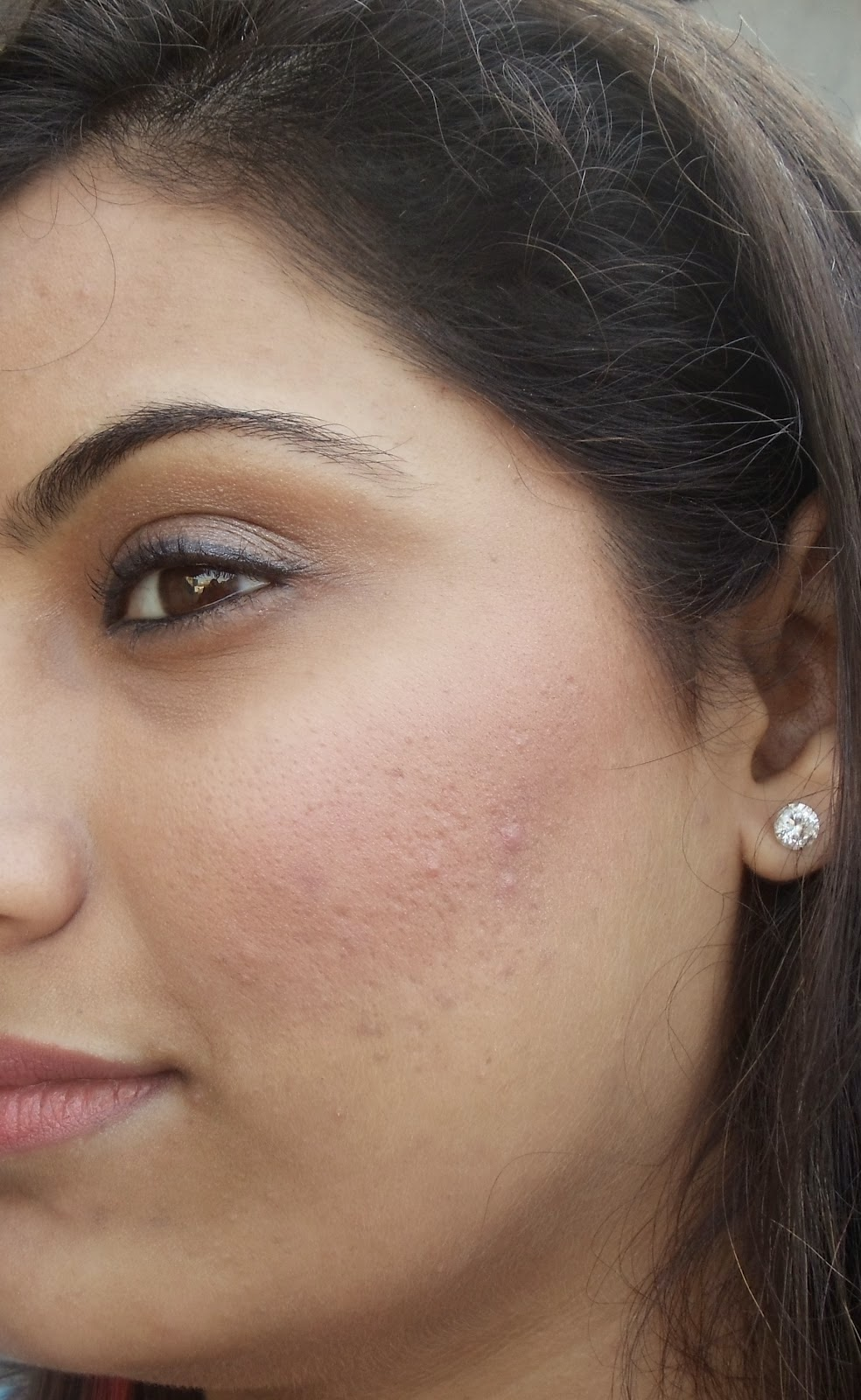 how to close your pores
