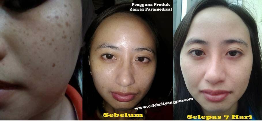 rawatan pigmentasi