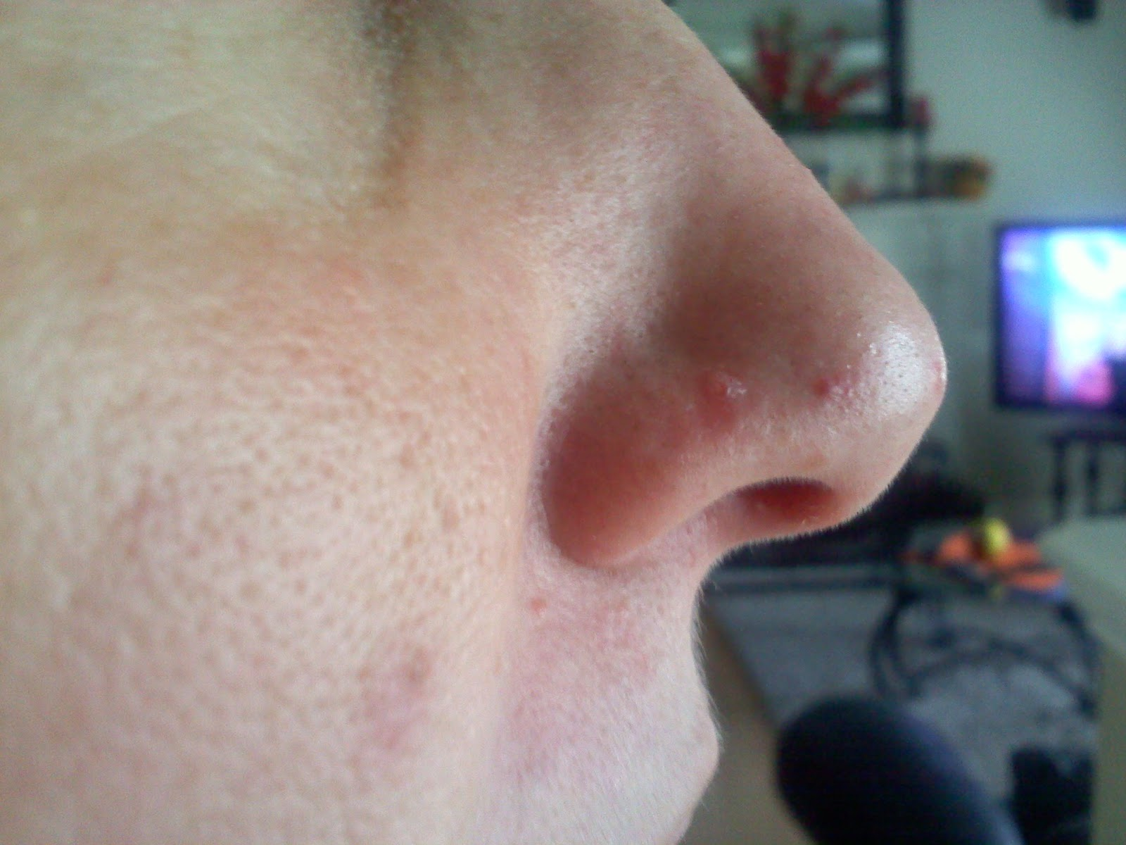 how to get rid of bump on nose