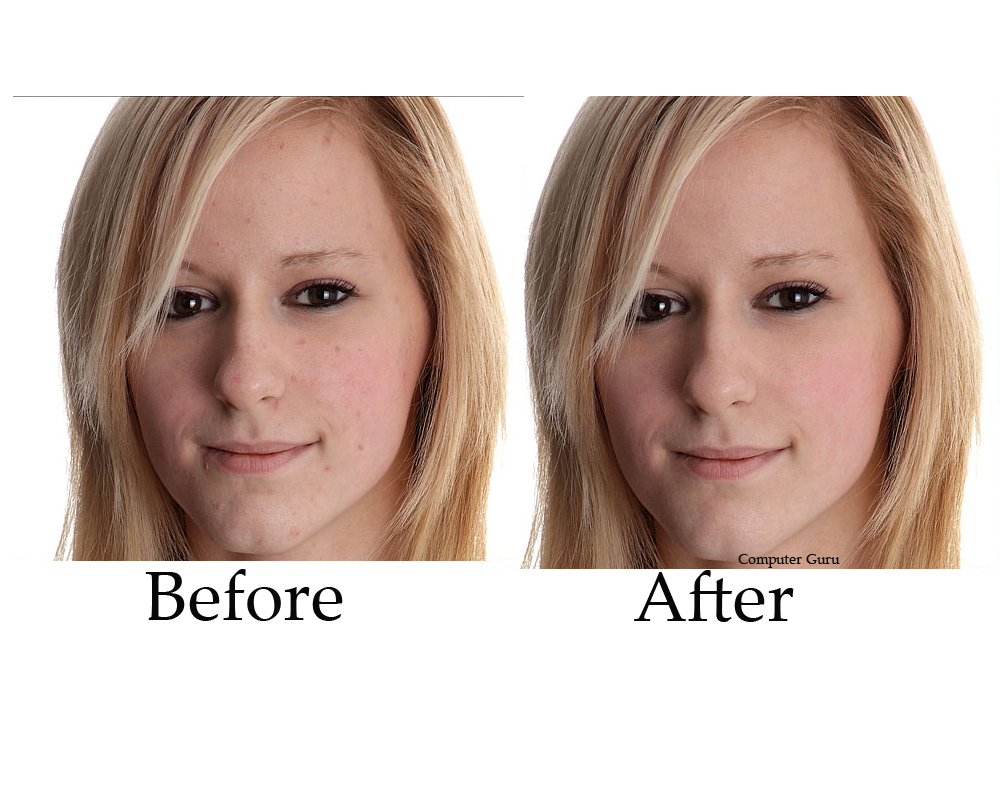 How do you get rid of spots on photoshop