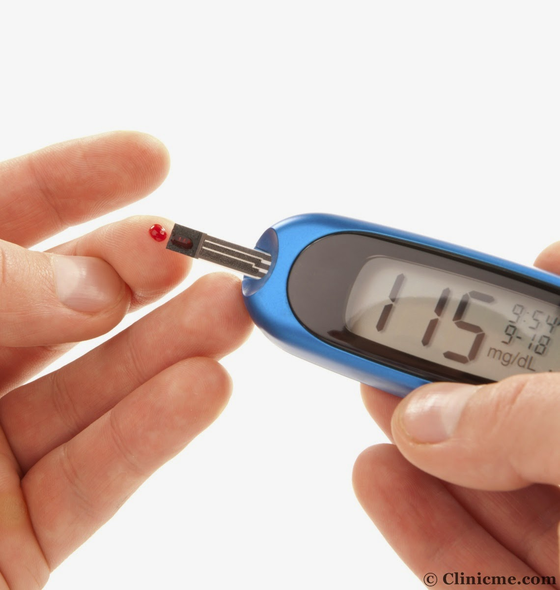 Type 2 Diabetes Signs Symptoms