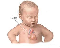 COCHIN CARDIAC CLUB: CONGENITAL HEART DEFECTS