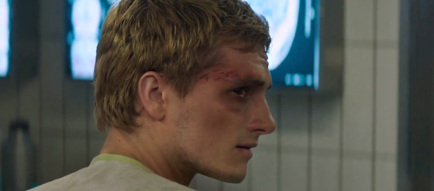 The Hunger Gamers • OFFICIAL: First Look At Tortured Peeta ...
