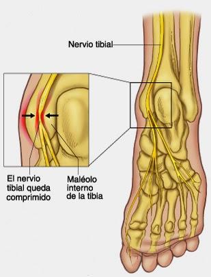 Fisiotec: Lesiones comunes