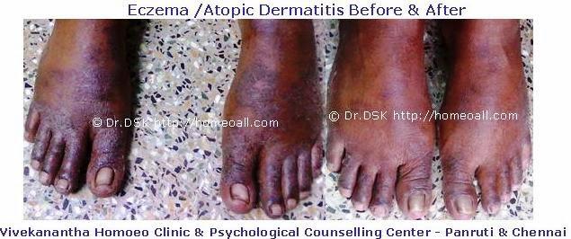 Tamilnadu Eczema - Atopic Dermatitis Hospital - Velachery, Chennai, dr.sendhil kumar panruti, velachery