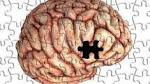 Doença de Alzheimer - Fase final