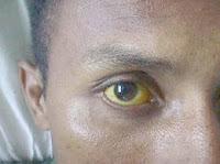 en la  imagen se ve como el ojo tiene ictericia (color amarillento) debido a que la persona está en fase grave de leptospirosis