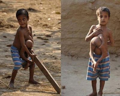الطفل الذي حير العالم بأكمله ~ اضغطوا علي الصورة لتكبيرها