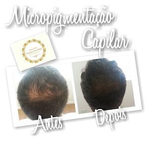 Clique e conheça nossos trabalhos de Micropigmentação Capilar!