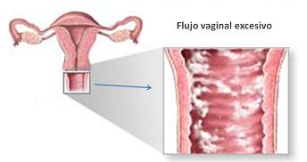 Picor y escozor vulva