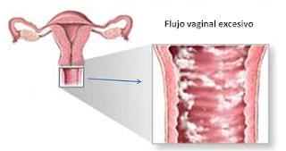 candidiasis, vaginitis, vaginitis bacteriana, Vaginitis candidiásica, Vaginitis tricomoniásica, vaginosis, vaginosis bacteriana, vulbovaginitis, vulbovaginitis candidiásica, vulbovaginitis tratamiento,