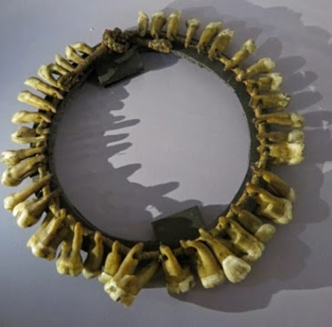 Tooth Necklace: Guest Post by Kristin Hussey, Hunterian Museum, London
