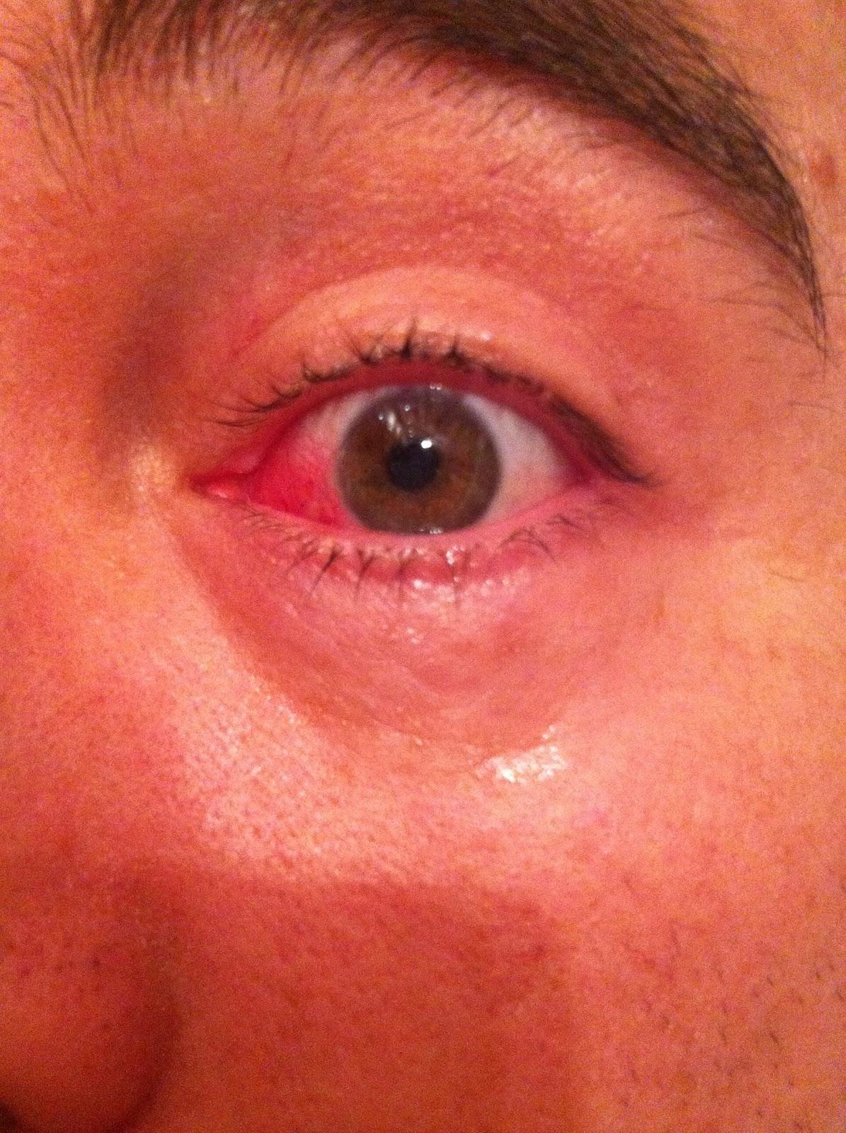 Pterygium eye surgery
