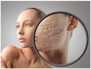 Cara mengatasi kulit wajah yang kering