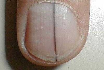 Longitudinal Melanonychia Striata Nails Diseases