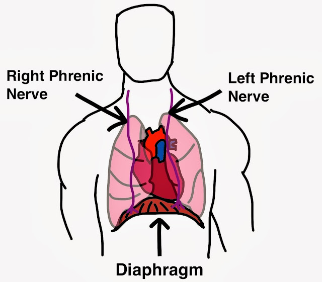 Diaphragmatic Pacing Phrenic Nerve Pacing