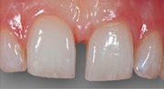 relleno espacio dientes resina diastema