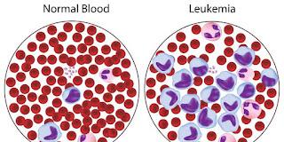 Cara Menyembuhkan Leukimia