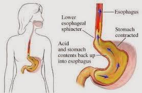 Trào ngược dạ dày thực quản: triệu chứng và cách điều trị