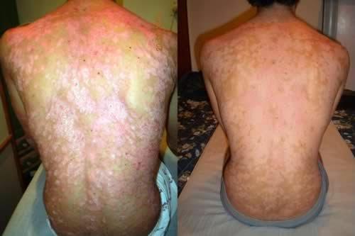 Las enfermedades de la piel neyrodermit el tratamiento