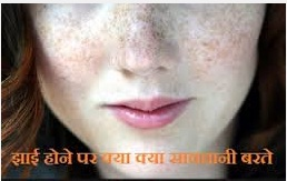 http://ayurvedhome.blogspot.in/2015/09/jhaai-or-pigmentation.html