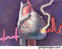 mengenal penyakit jantung rematik,penyakit jantung rematik,jantung rematik