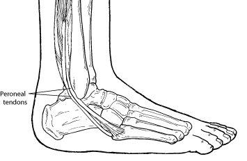 lateral plantar foot pain
