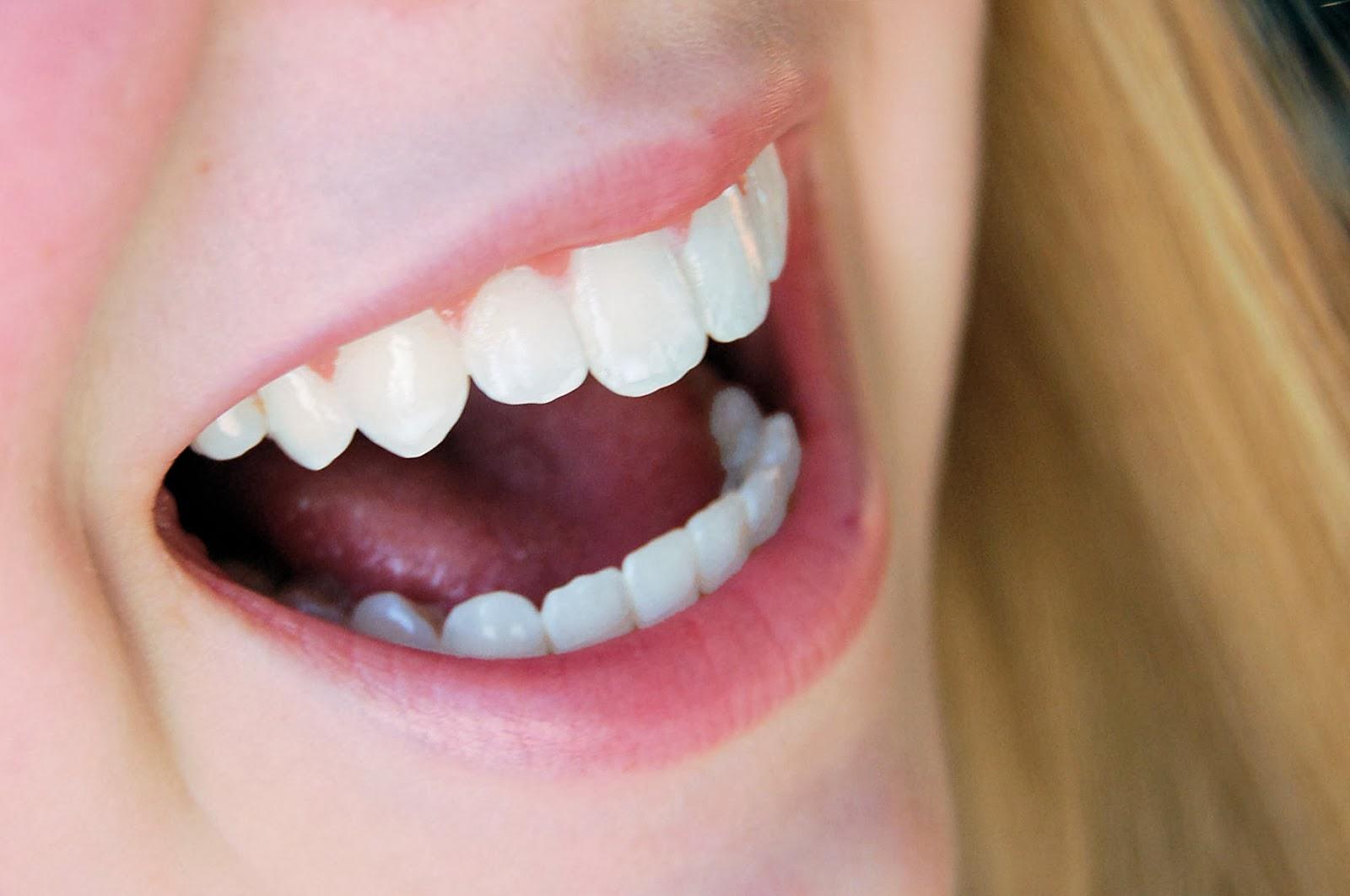 Dentes sem cárie com alimentos que melhoram a saúde da boca, combatem bactérias, a placa e limpam os dentes...