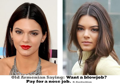 Kendall Jenner nose job funny